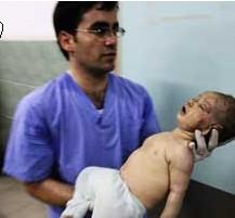 Injured Palestinian baby